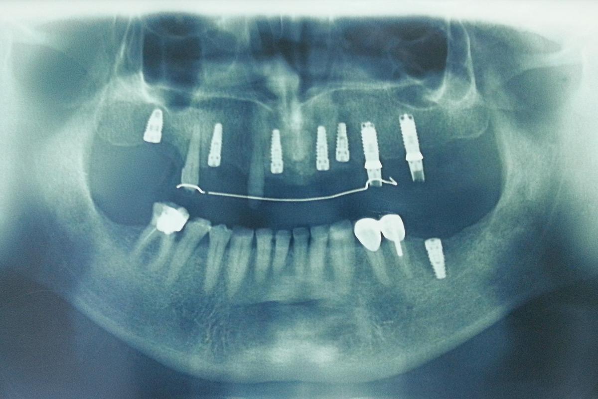 oralna-hirurgija-i-implantologija