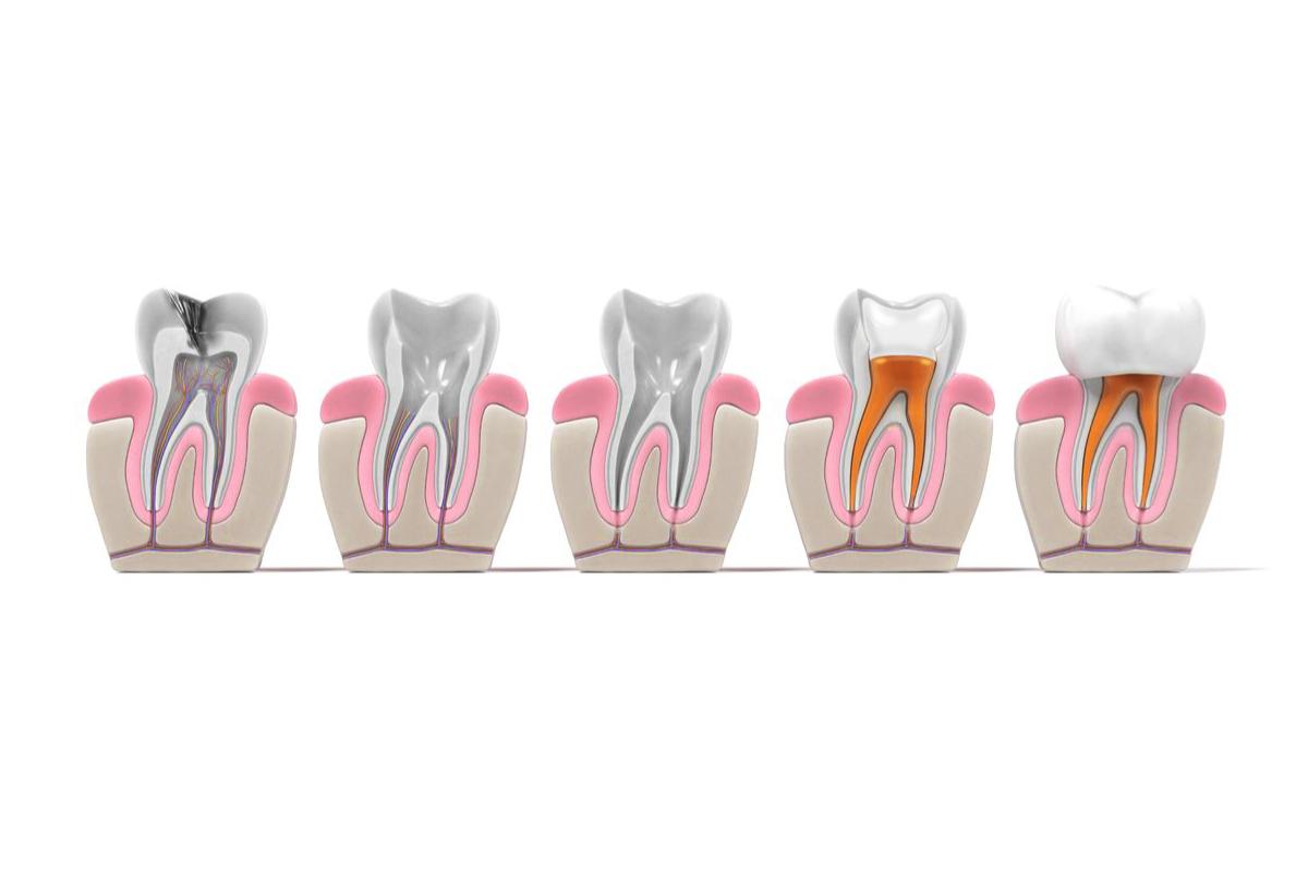 konzervativno-lecenje-zuba